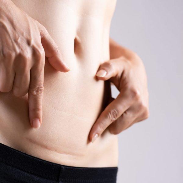 Ejercicios hipopresivos posparto cesarea